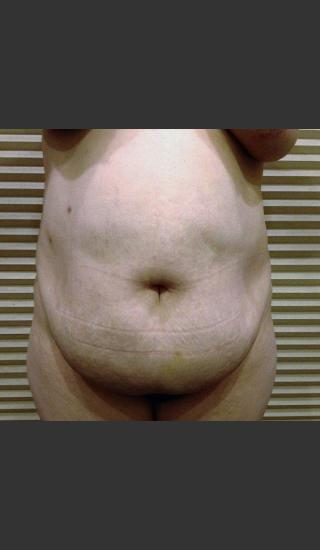 Before Photo for Dr. Palmer Tummy Tuck 02 - Shane Palmer - Prejuvenation