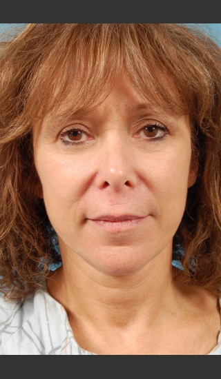 After Photo for Facelift Surgery - Thomas A. Mustoe, MD, FACS - Prejuvenation