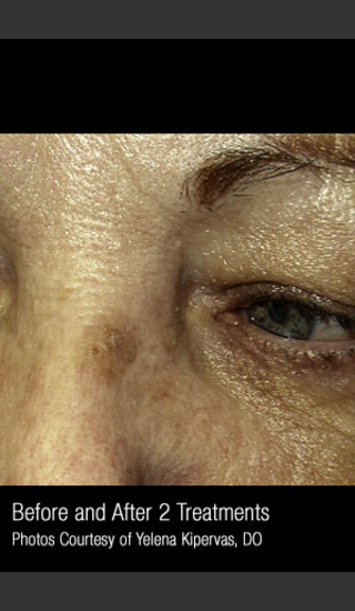 Before Photo for Treatment of Facial Pigmentation #330 -  - Prejuvenation