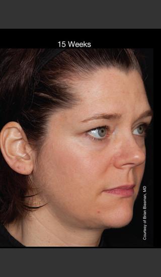 After Photo for Hyperpigmentation - Professional Peel - Brian S. Biesman, MD - Prejuvenation