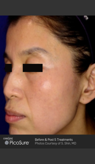 After Photo for Wrinkle Reduction with PicoSure -  - Prejuvenation