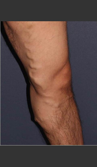 Before Photo for Non-surgical Leg Vein Treatment - Mitchel P. Goldman M.D. - Prejuvenation