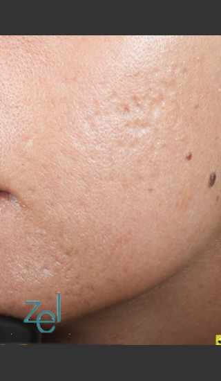 After Photo for Fractional Resurfacing Acne Scars - Brian D. Zelickson, M.D. - Prejuvenation