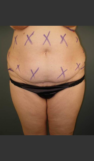 Before Photo for Liposuction #44 Front View - Dr. David Amron - Prejuvenation