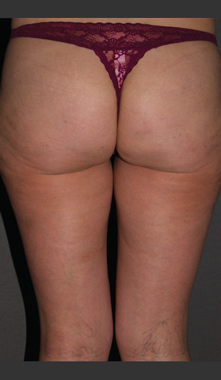 After Photo for Cellfina Case #2 - South Coast Plastic Surgery - Prejuvenation