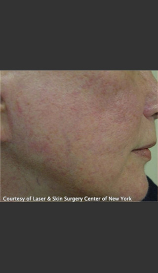 Before Photo for Treatment of Facial Blood Vessels -  - Prejuvenation