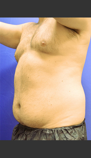 Before Photo for Liposuction Case #1 - Paul C. Dillon, MD - Prejuvenation