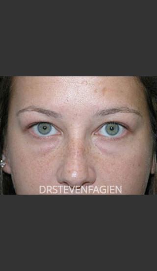 Before Photo for Lower Eyelid Fat Removal - Patient 4 - Steven Fagien, MD - Prejuvenation