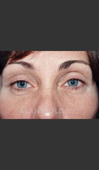Before Photo for Blepharoplasty 1014 - Alan Gold MD - Prejuvenation