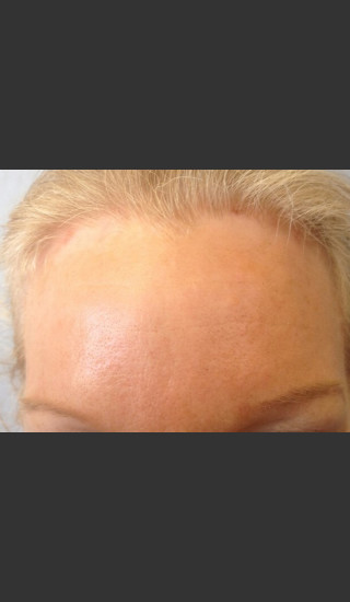 After Photo for Before & After Botox - Janell Ocampo - Prejuvenation