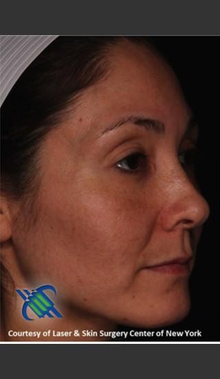 After Photo for Facial Skin Rejuvenation of Face - Roy G. Geronemus, M.D. - Prejuvenation