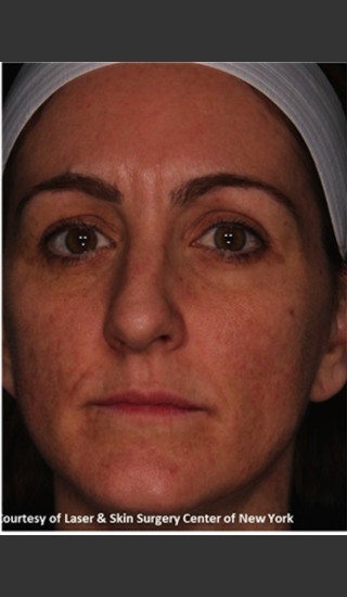 After Photo for Full face Treament with Fraxel - Roy G. Geronemus, M.D. - Prejuvenation