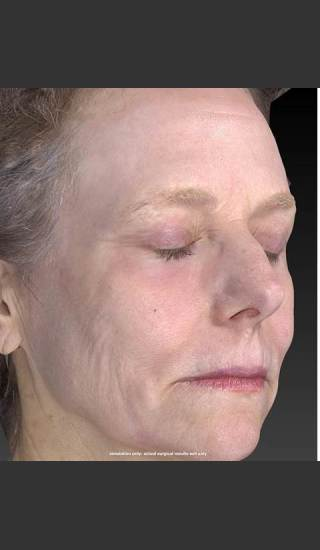 After Photo for Wrinkle and Brown Spot Reduction - Douglas Wu, M.D. - Prejuvenation
