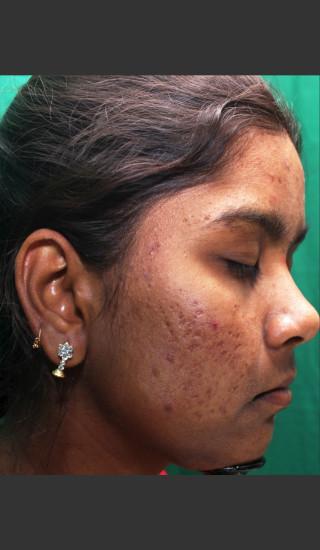 Before Photo for Infini Rhytides Treatment #22 -  - Prejuvenation