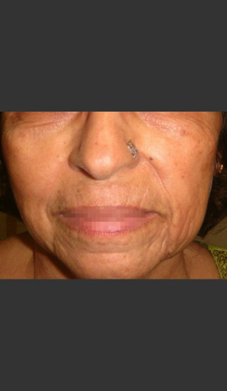 Before Photo for Infini Rhytides Treatment #20 -  - Prejuvenation
