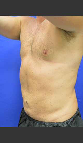 After Photo for Liposuction Case #1 - Paul C. Dillon, MD - Prejuvenation