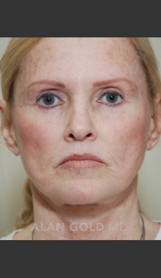 Before Photo for Rhytidectomy (Facelift) 1753 - Alan Gold MD - Prejuvenation