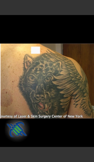 Before Photo for Treatment of Shoulder Tattoo - Roy G. Geronemus, M.D. - Prejuvenation