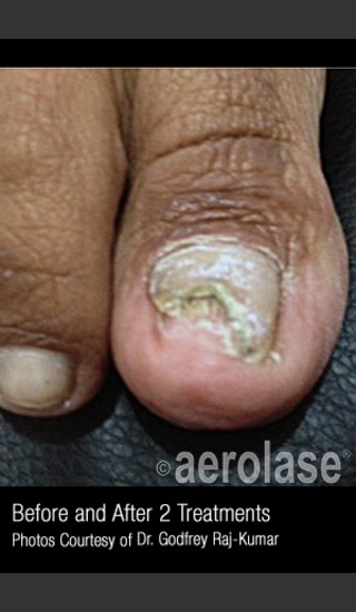 Before Photo for Treatment of Nail Fungus #321 -  - Prejuvenation