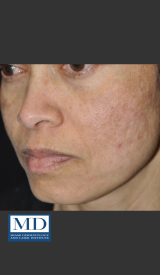 After Photo for Melasma Face Treatment 117 - Jill S. Waibel, MD - Prejuvenation