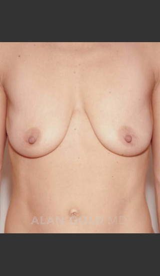 Before Photo for Mastopexy and Augmentation 515 - Alan Gold MD - Prejuvenation