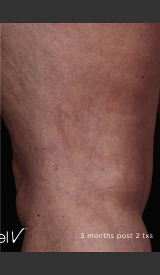 After Photo for Back of Thigh Leg Vein Clearance  -  - Prejuvenation