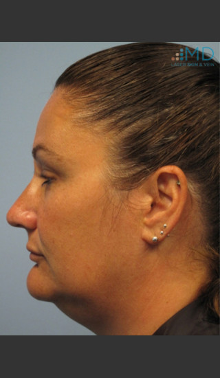 Before Photo for Exilis Skin Tightening of the Lower Face - Margaret Ann Weiss - Prejuvenation