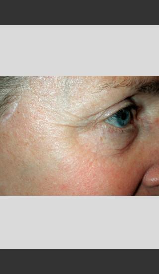 After Photo for Vbeam Pulsed Dye Laser - Wrinkles -  - Prejuvenation