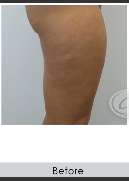 Before Photo for  VanquishME with Cellutone Treatment - Annie Chiu, MD - ZALEA Featured Before & After