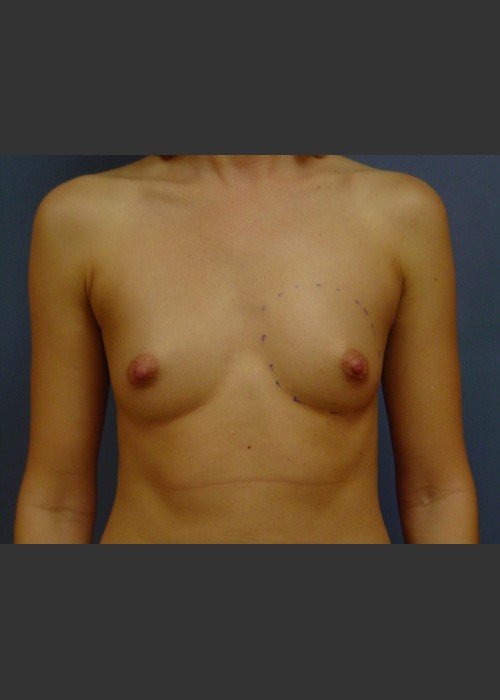 Before Photo for  Breast Augmentation - Michael S. Beckenstein, MD - ZALEA Featured Before & After