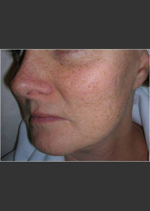 Before Photo for  Sun Damage and Acne Scarring - Christopher B. Zachary, MD - ZALEA Featured Before & After
