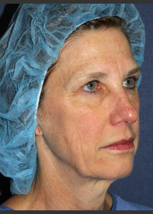 Before Photo for  Treatment of Sun Damage - Mitchel P. Goldman M.D. - ZALEA Featured Before & After