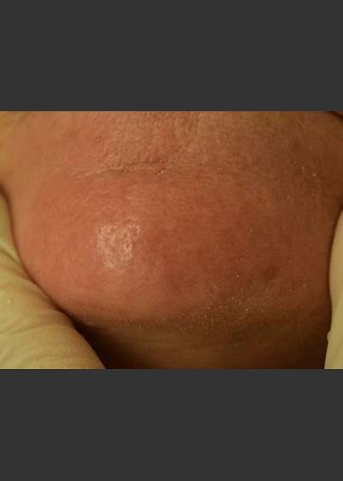 After Photo for Cutera Laser Treatment - Skin Cancer Specialists P.C. & Aesthetic Center - ZALEA Featured Before & After