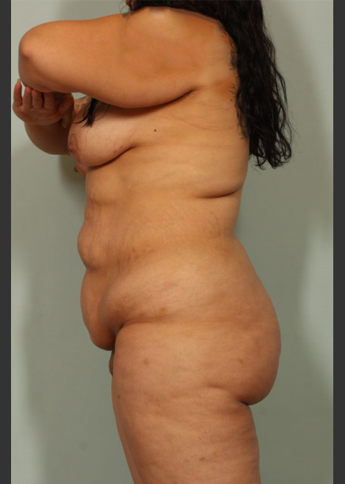 Before Photo for  Tummy Tuck - El Paso Cosmetic Surgery - ZALEA Featured Before & After