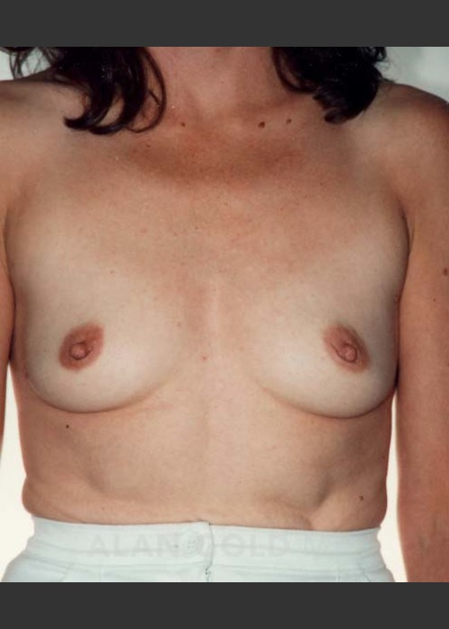 Before Photo for  Breast Augmentation 582 - Alan Gold MD - ZALEA Featured Before & After