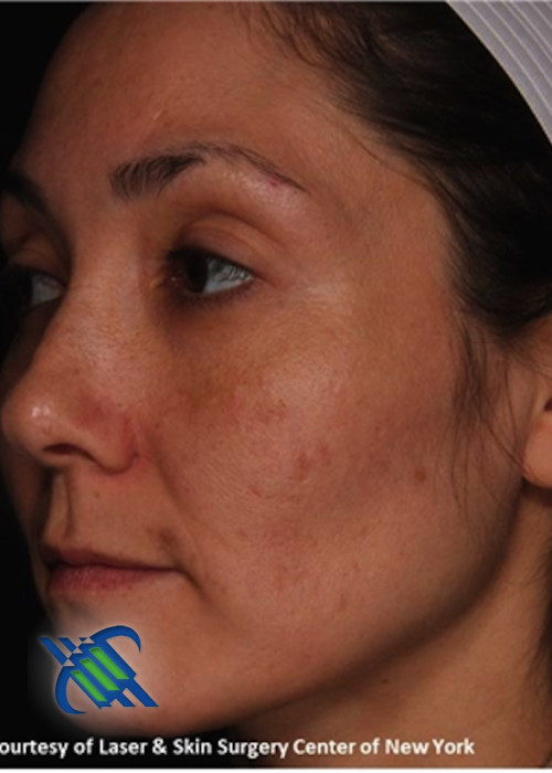 After Photo for Treatment of Melasma on the Left Side - Roy G. Geronemus, M.D. - ZALEA Featured Before & After