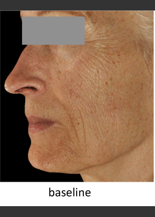 Before Photo for  DefenAge Skincare Clinical Power Trio - Amy Forman Taub, MD - ZALEA Featured Before & After