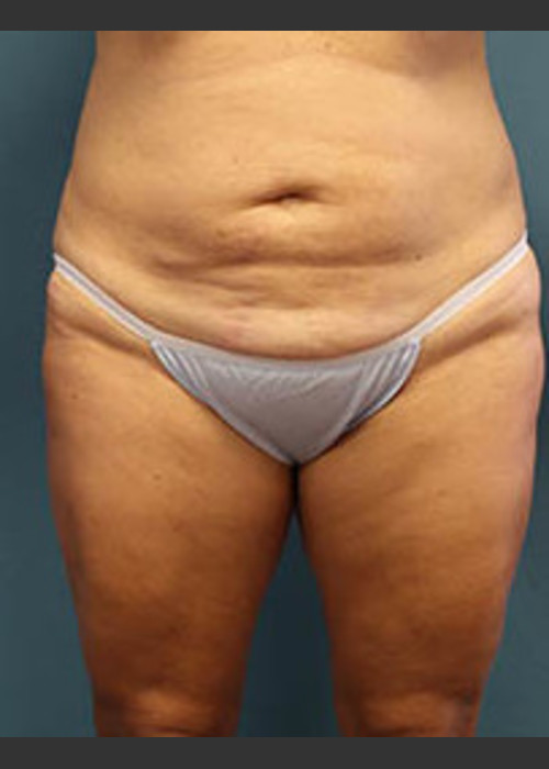 Before Photo for  Before and After Tummy Tuck - Arthur Handal - ZALEA Featured Before & After