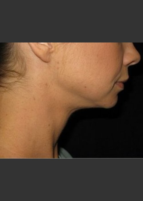 After Photo for Laser Asissted Liposuction - Robert Aycock - ZALEA Featured Before & After