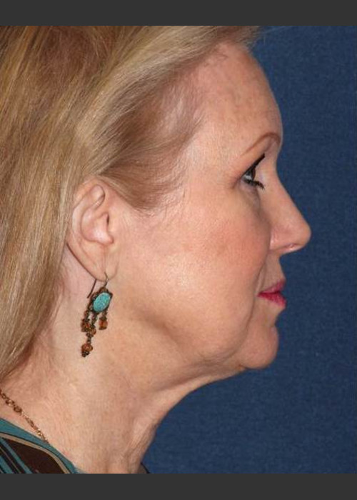 After Photo for Non-invasive Chin Contouring - Dr. Sabrina G. Fabi - ZALEA Featured Before & After
