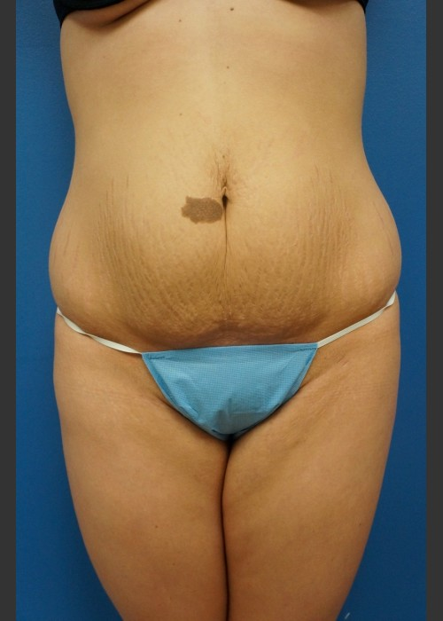 Before Photo for  Abdominoplasty (Tummy Tuck) Before & After - Dr. Josh Olson - ZALEA Featured Before & After