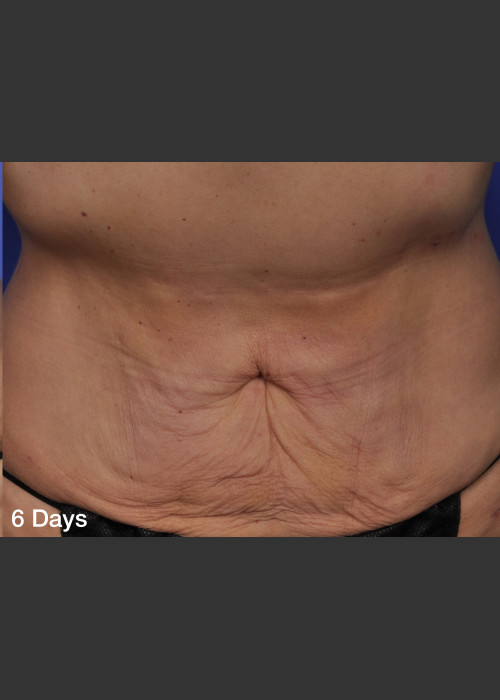 After Photo for ThermiTight Treatment - Barry E. DiBernardo, MD, FACS  - ZALEA Featured Before & After
