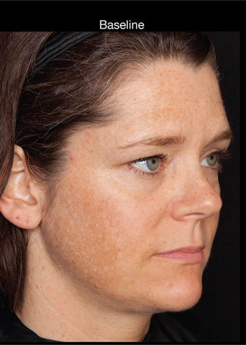Before Photo for  Hyperpigmentation - Professional Peel + Homecare - Brian S. Biesman, MD - ZALEA Featured Before & After