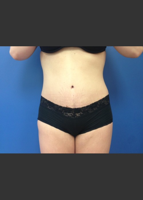 After Photo for Abdominoplasty (Tummy Tuck) Before & After - Dr. Josh Olson - ZALEA Featured Before & After