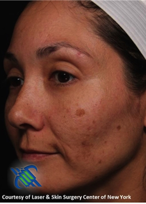Before Photo for  Treatment of Melasma on the Left Side - Roy G. Geronemus, M.D. - ZALEA Featured Before & After