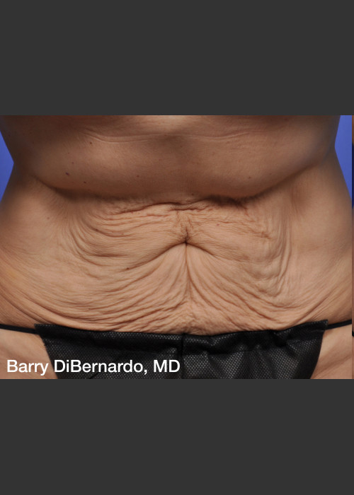 Before Photo for  ThermiTight Treatment - Barry E. DiBernardo, MD, FACS - ZALEA Featured Before & After