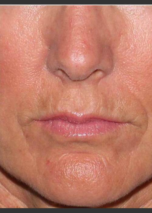 After Photo for Reduction of Perioral Lines - Douglas Wu, M.D. - ZALEA Featured Before & After