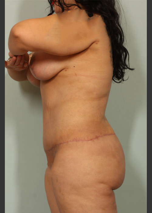 After Photo for Tummy Tuck - El Paso Cosmetic Surgery - ZALEA Featured Before & After