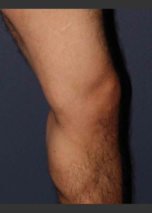 After Photo for Non-surgical Leg Vein Treatment - Mitchel P. Goldman M.D.  - ZALEA Featured Before & After