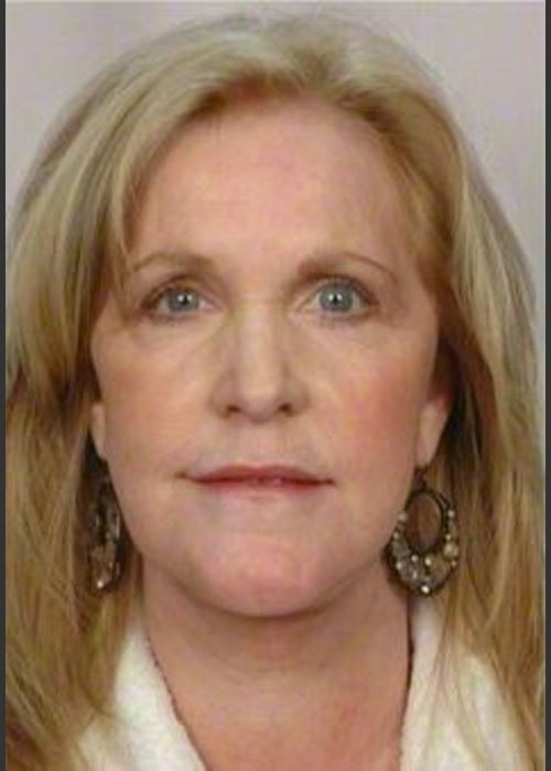 After Photo for 58 Year Old Female: Facelift - R. Scott Yarish MD, FACS  - ZALEA Featured Before & After